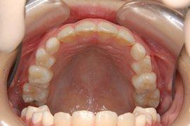 前歯のデコボコ(叢生:ごうせい)