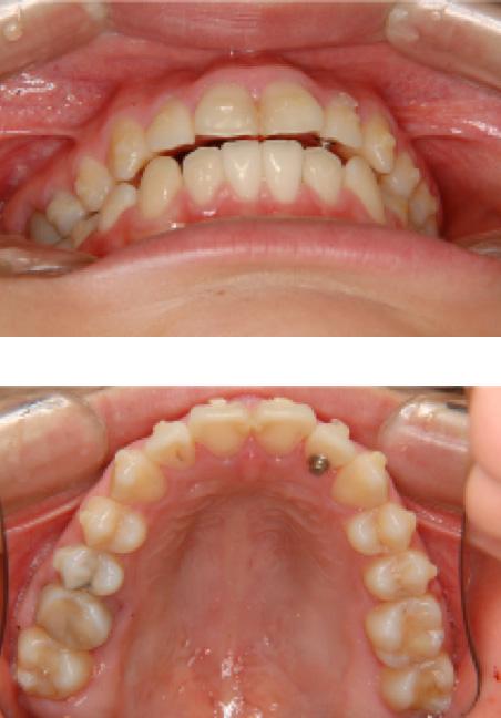 前歯のデコボコ(叢生:そうせい)