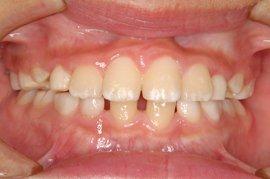 すきっ歯(空隙歯列:くうげきしれつ)