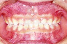 乳歯反対咬合(にゅうしはんたいこうごう)