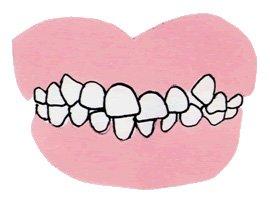 1.歯のデコボコ(叢生:そうせい 歯の重なりや不揃い)