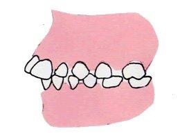 3. 出っ歯