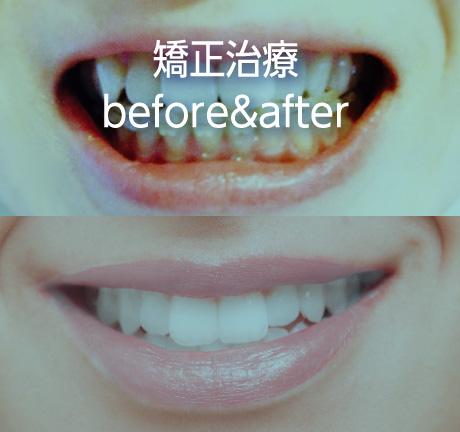 矯正治療before&after